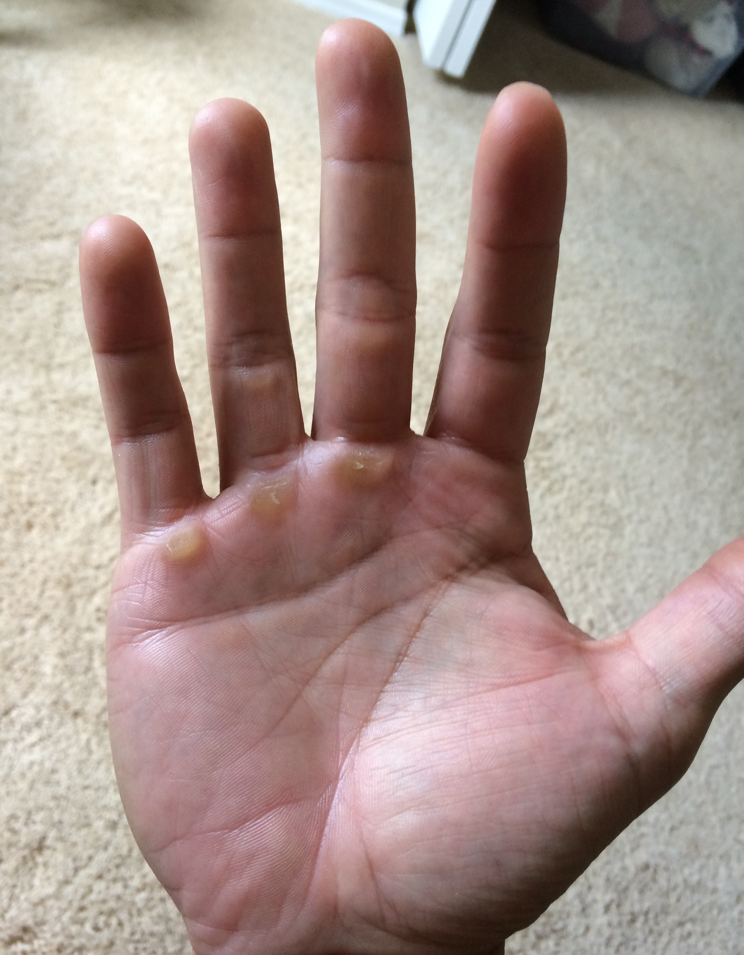 This is what my right hand looks like. Luckily I took this photo today. My hands always look the best on Sunday because it is after they have had a couple days of rest with no weight lifting.
